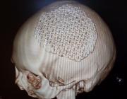 Технологию изготовления имплантов для пластики дефектов черепа разработали в Беларуси