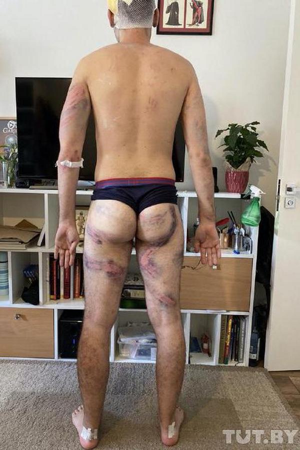 Максима избили так, что до изолятора он не доехал, его увезли медики. Фото предоставлено героем публикации