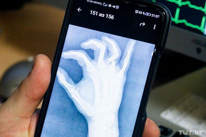 Снимок кисти пациента, поступившего в БСМП после выборов. Фото: Ольга Шукайло, TUT.BY